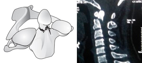 Hình ảnh gãy mỏm nha loại 2 trên cắt lớp vi tính