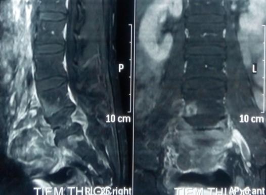 Phim MRI có tiêm thuốc