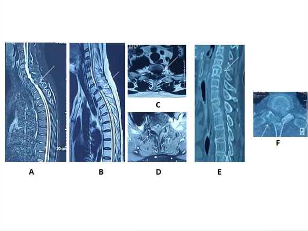 Hình 2: Phim chụp cắt lớp vi tính và cộng hưởng từ cột sống ngực