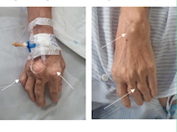 Hình 1: Hình ảnh hạt tophi tại các khớp bàn, ngón tay bệnh nhân.