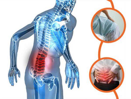 Đau Thắt Lưng: Nguyên nhân, triệu chứng, cách điều trị