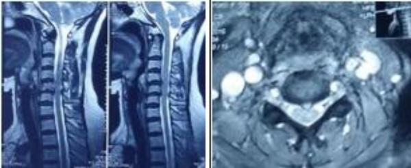 Hình 1. Thoát vị đĩa đệm trêm MRI