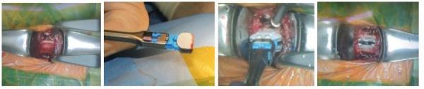 Hình 3. Lấy bỏ đĩa đệm thoát vị, đặt đĩa đệm nhân tạo trong mổ