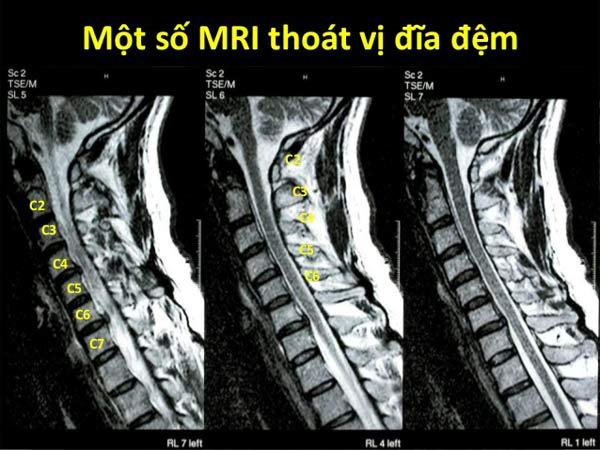Một số hình thái thoát vị đĩa đệm cột sống cổ trên MRI