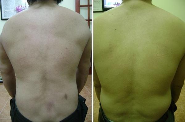 Hình ảnh bệnh nhân trượt đốt sống thắt lưng