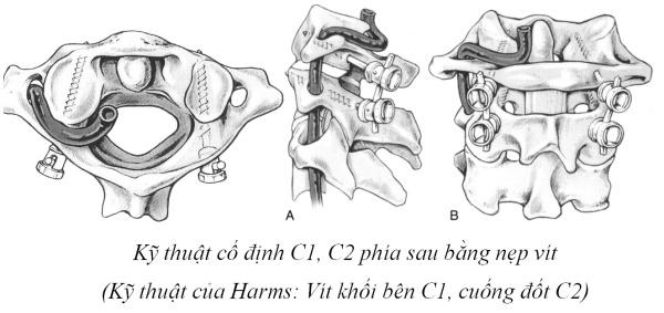 kỹ thuật Goel – Harm để cố định C1 C2