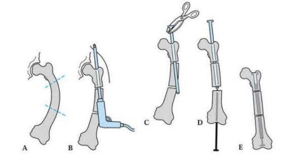 Kĩ thuật cắt xương chỉnh trục và đóng đinh (đinh Fassier-Duval) mổ mở