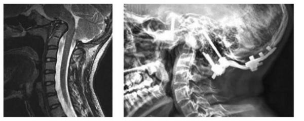 Hình 7: (A) Cộng hưởng từ cột sống cổ thì T2 cho thấy chèn ép nền sọ tiến triển của trẻ 14 tuổi OI. BN có biểu hiện đau đầu, đau cổ, không giảm, không có thiếu sót về vận động và ciarm giác tứ chi. (B) Hình ảnh sau mổ giải ép, nẹp vít cổ chẩm của cùng bệnh nhân.