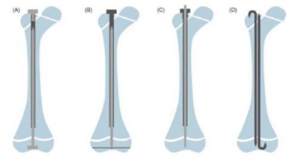 Dụng cụ thường dùng khi cắt xương chỉnh trục và đặt đinh nội tủy
