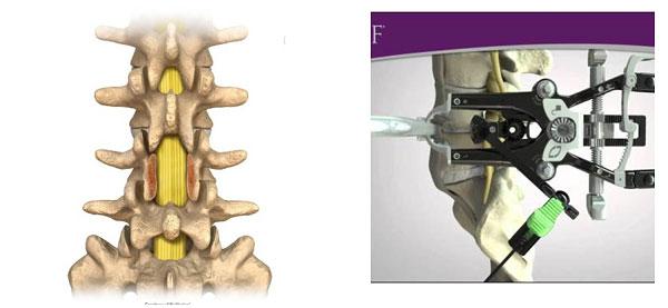 Phẫu thuật cắt bỏ cung sau (bên trái) và phẫu thuật XLIF (bên phải)