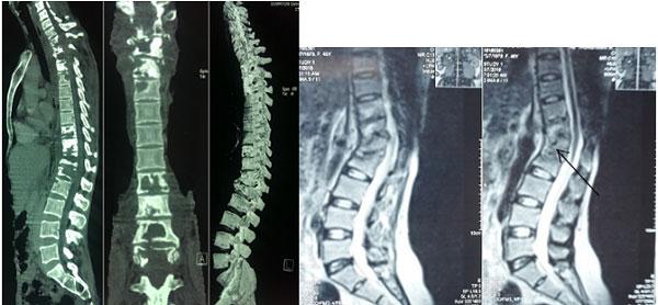 Hình ảnh cắt lớp vi tính (bên trái) và cộng hưởng từ (bên phải) trong lao cột sống