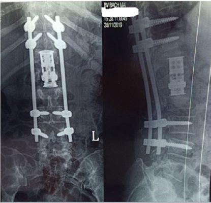 Cố định cột sống và thay thân đốt sống nhân tạo tổn thương lao T12L1L2