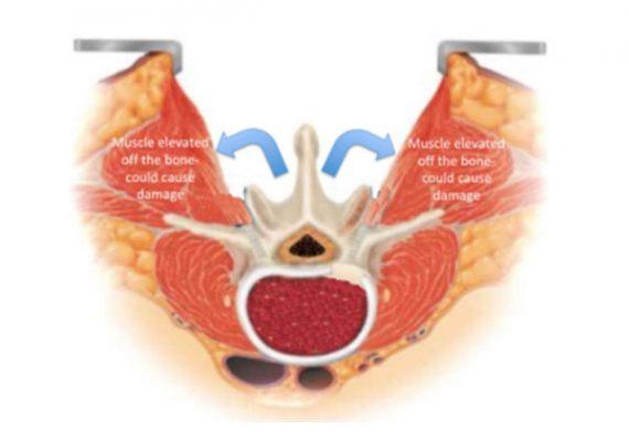Phẫu thuật mổ mở truyền thống