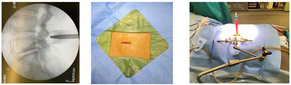 Phẫu thuật lấy thoát vị đĩa đệm qua hệ thống ống nong