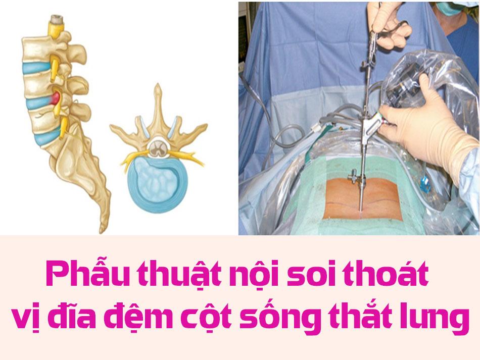 Phẫu thuật nội soi thoát vị đĩa đệm cột sống thắt lưng