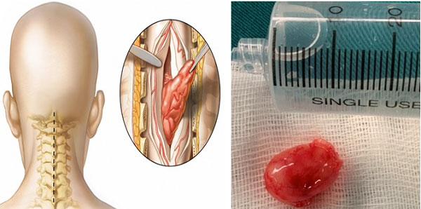 Phẫu thuật lấy u tuỷ sống cột sống cổ