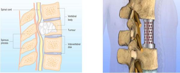 U tế bào khổng lồ than đốt sống và phẫu thuật thay thân đốt sống