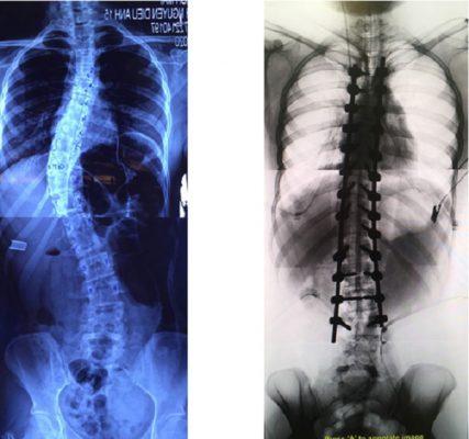 Hình ảnh phẫu thuật chỉnh vẹo trước và sau phẫu thuật