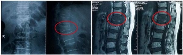 Hình ảnh xẹp đốt sống L1 trên X-quang và MRI