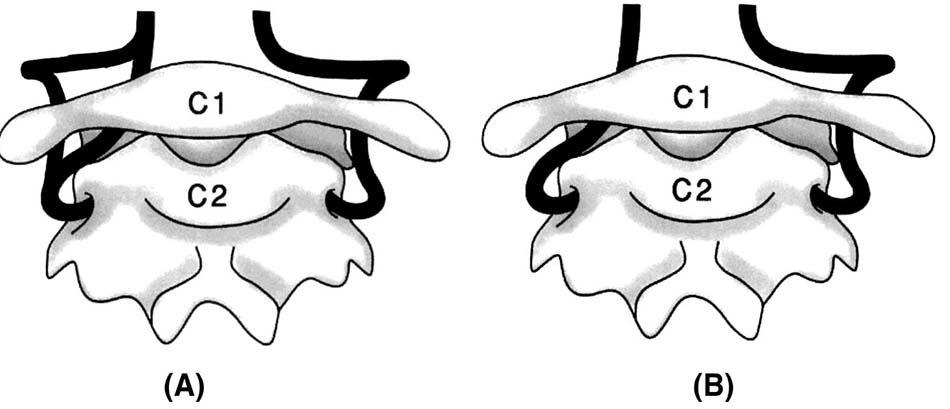 Minh họa ĐMĐS chẽ đôi và tồn lưu ĐM chẩm đội bào thai