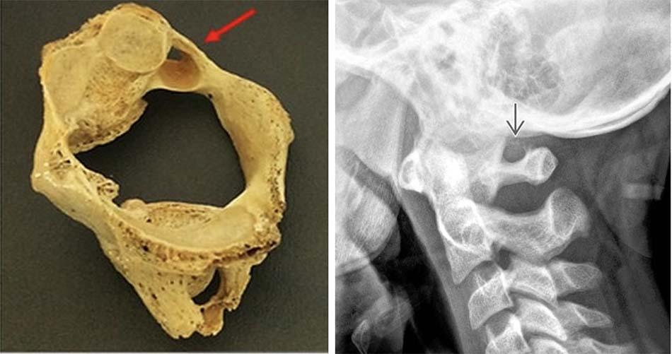 Lỗ cung C1: nhìn nghiêng trên bệnh phẩm xương khô và trên phim XQ cột sống cổ nghiêng