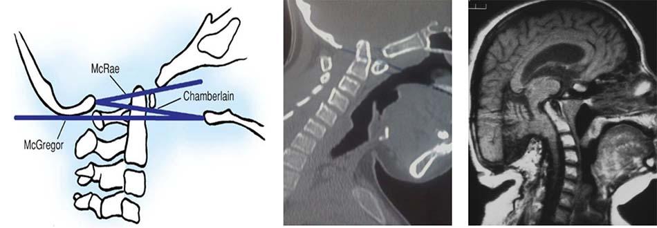 Tật lồng đáy sọ trên cắt lớp vi tính và cộng hưởng từ [1]
