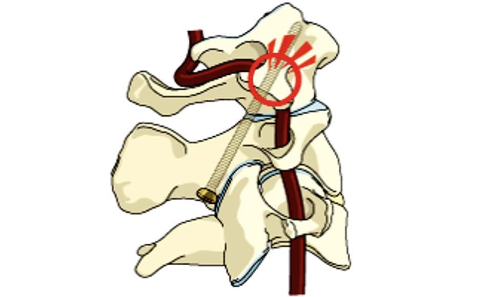 Minh họa nguy cơ cao tổn thương ĐMĐS khi vít qua khớp C1 - C2 ở bệnh nhân có ĐMĐS trèo cao