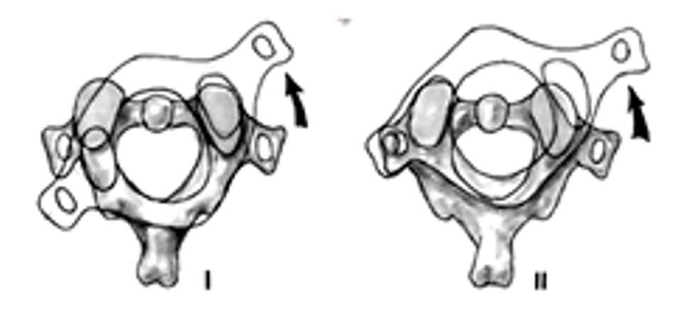 Trật C1-C2 loại 1 và 2