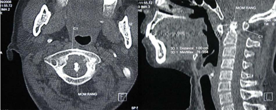 Trật C1-C2 do bệnh lý viêm khớp dạng thấp